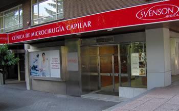 Clinica-microinjerto-madrid-svenson-medical